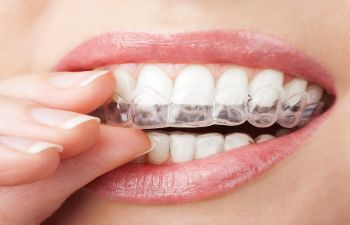 Does Invisalign Move Teeth That Have Crowns or Veneers? Napa, CA